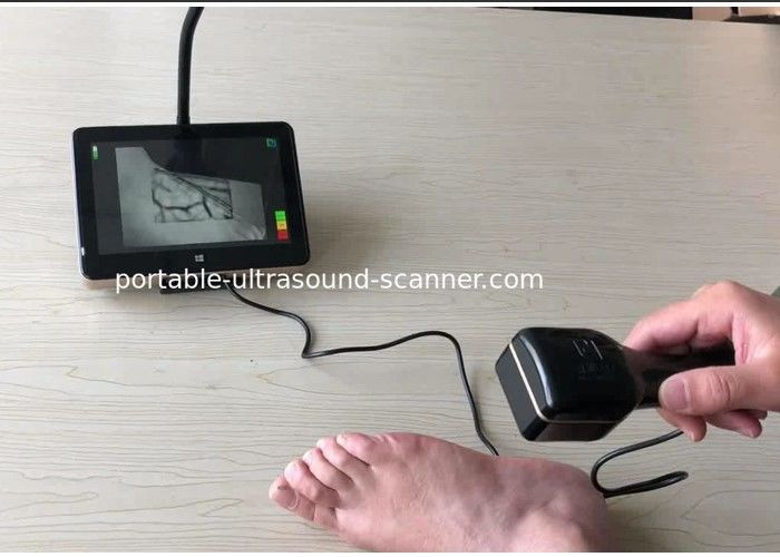Medical Vein Viewing System Infrared Vein Locator Handheld Pocket Vein Viewer with LED Light