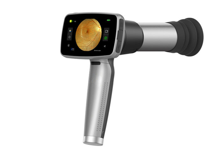 160 Million Pixel Resolution Auto Focus Ophthalmic Handheld Fundus Camera For Remote Diagnosis