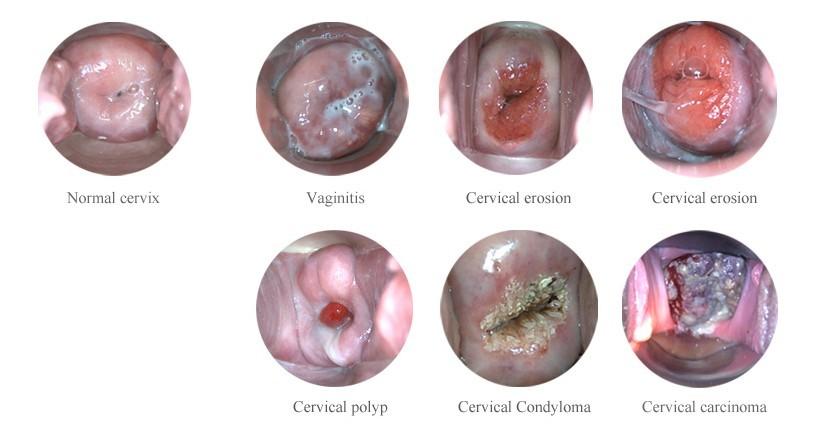 wie sieht eine normale vagina aus